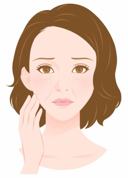 女性顔たるみほうれい線